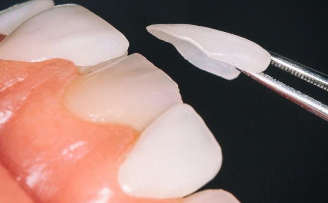 Накладки на зубы: какими бывают и как называются