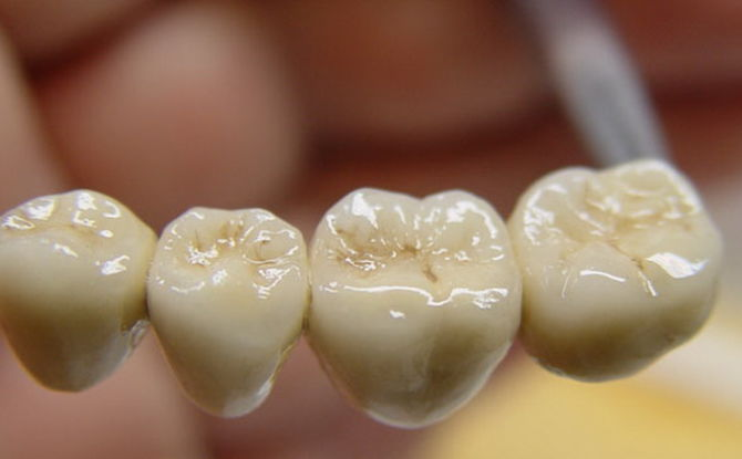 Протезирование зубов металлокерамикой, плюсы и минусы металлокерамических коронок