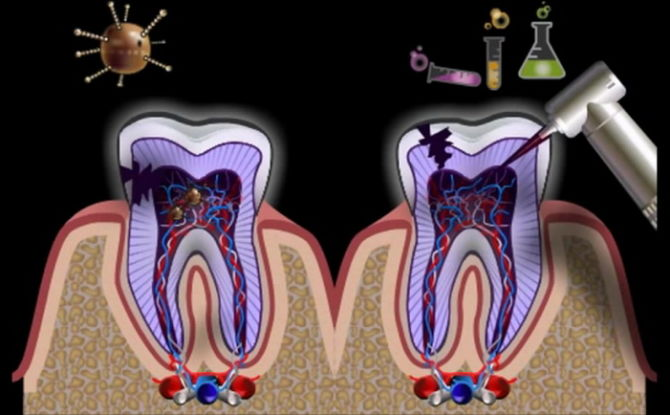 Воспаление корня зуба и зубных каналов: признаки, симптомы и лечение