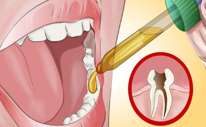 Зубная боль чем лечить в домашних условиях 222