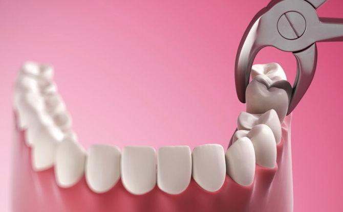 Можно ли удалять зубы во время беременности, как проводится удаление