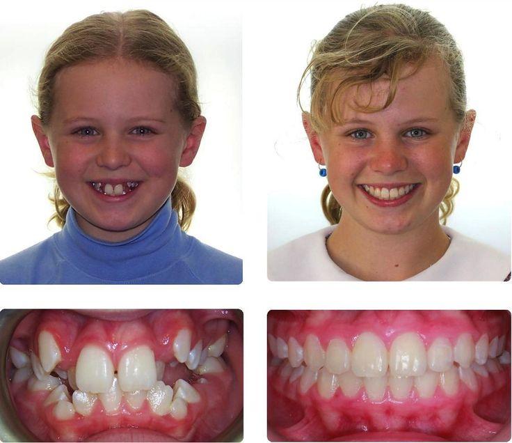 Из за чего вырастают кривые зубы