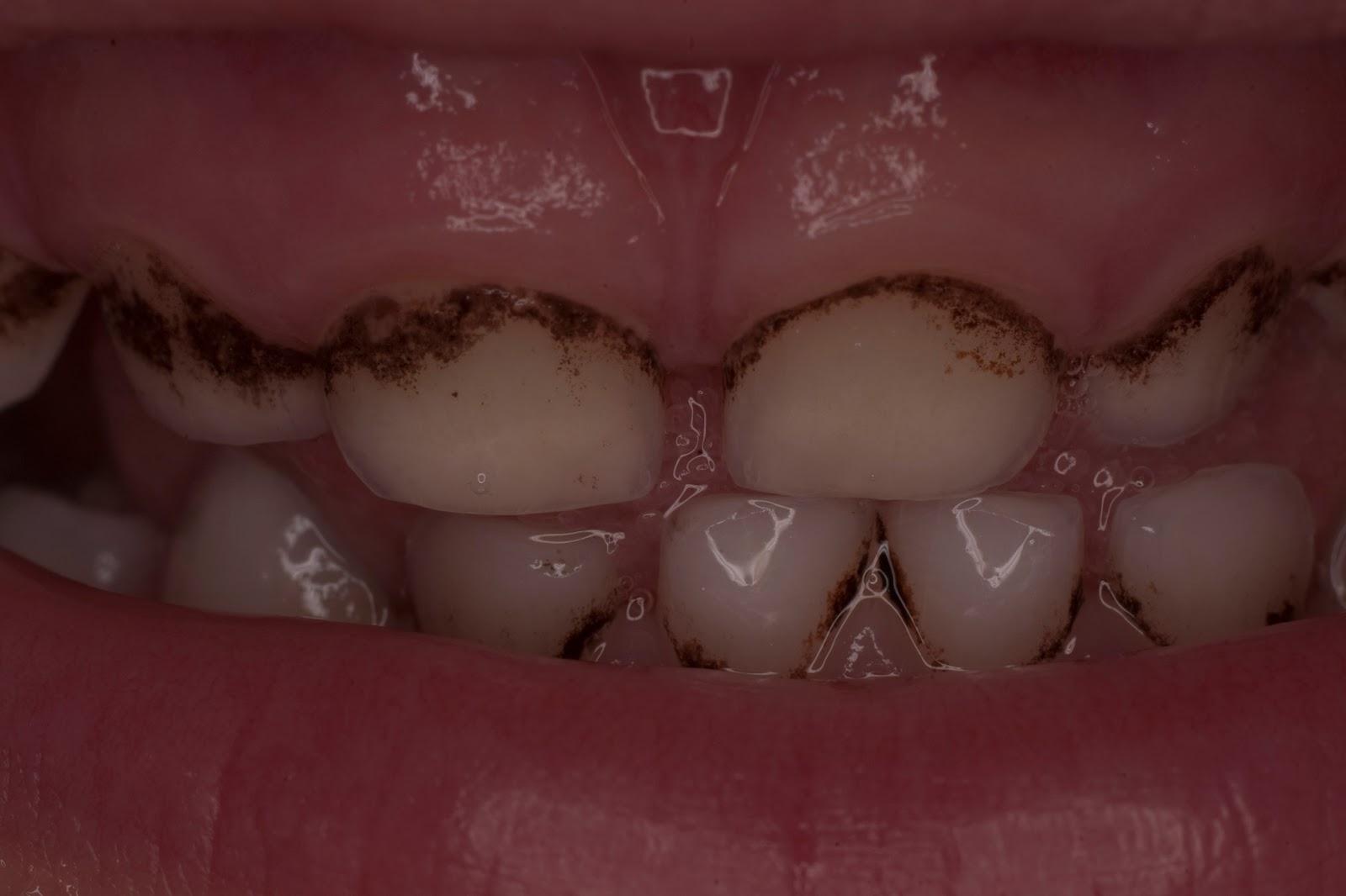 От чего появляется налет на зубах детей