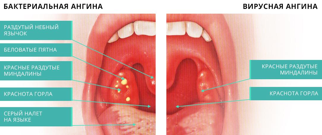 Болит горло больно глотать ребенку чем лечить