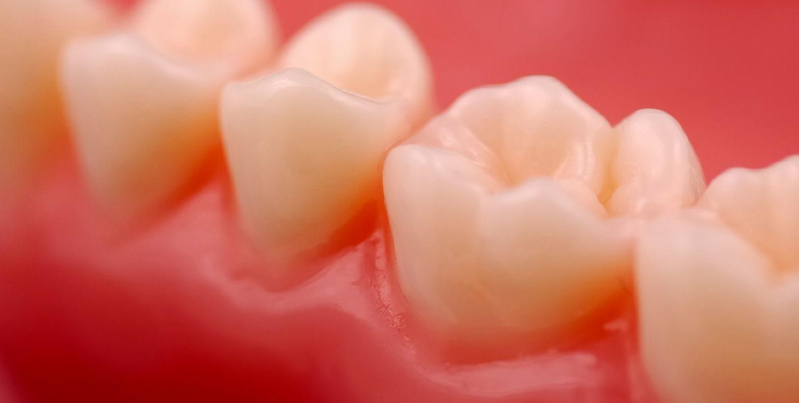 Как укрепить десны зубов в домашних условиях? - Асепта 41
