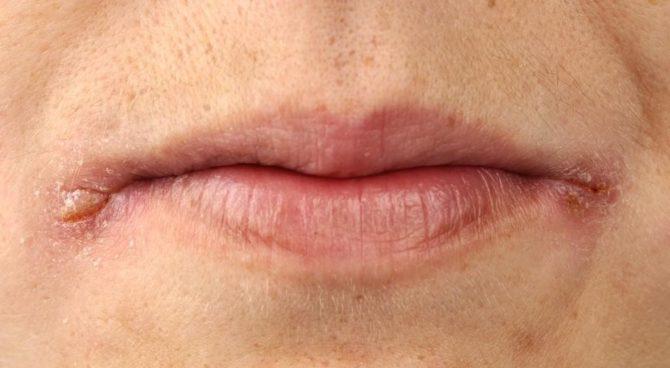 Как вылечить заеды в уголках рта у беременных 33