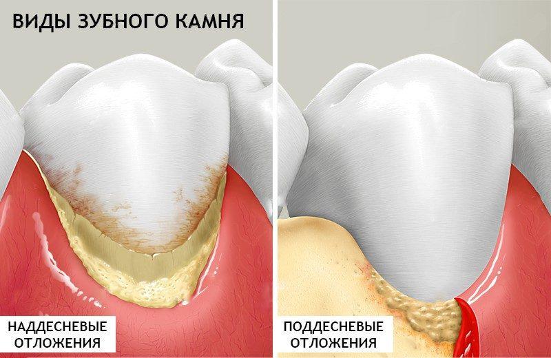Как выглядит зубной камень на зубах