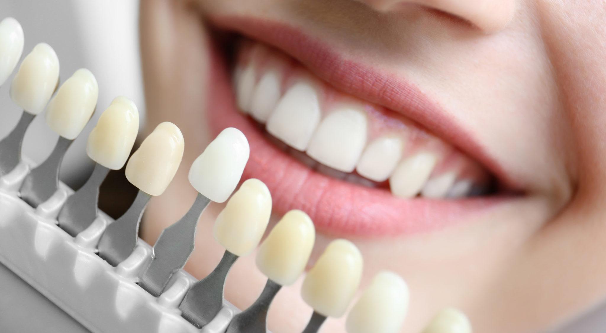 Обрабавыемграфии как сделать зубы