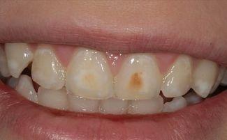 Почему желтеют зубы у взрослых, что делать и как их отбелить: причины и способы чистки