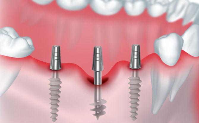 Базальная имплантация: что это такое, плюсы и минусы, этапы установки зубных протезов, осложнения