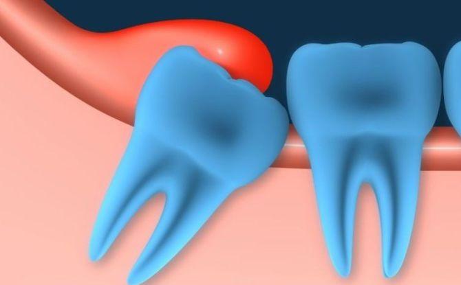 Воспалилась и опухла десна около зуба мудрости: причины, симптомы, лечение в клинике и домашних условиях
