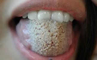 Кандидоз языка, молочница на языке у взрослых и детей: симптомы, лечение, фото