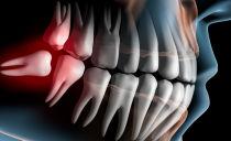 Удаление зуба мудрости на нижней и верхней челюсти, последствия и возможные осложнения
