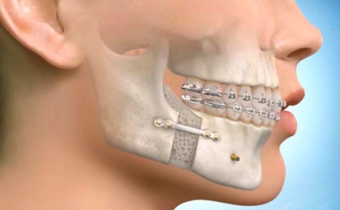 Переломы нижней и верхней челюсти: классификация, признаки, симптомы и лечение