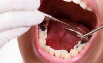 Лечение кариеса зубов: как лечат в стоматологии, этапы удаления кариеса