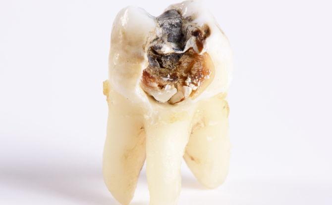Гнилые зубы: причины, последствия для организма, что делать с гнилыми зубами