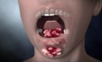 Рак полости рта: причины, симптомы, лечение и прогнозы при раке щеки, неба, языка, десны, дна полости рта