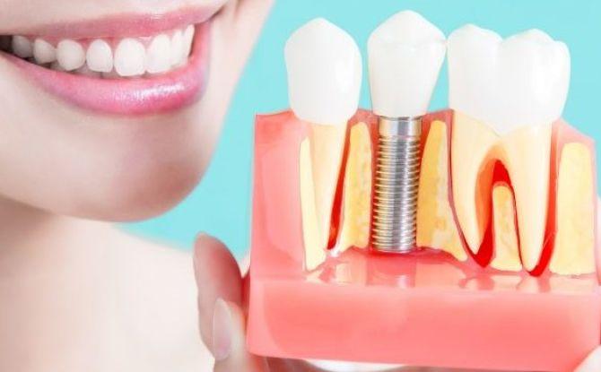 Сколько стоит вставить один имплантат зуба