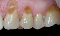 Причины, признаки и лечение клиновидного дефекта зубов