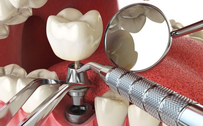 Имплантация зубов – противопоказания и возможные осложнения