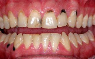 Гнилые зубы у детей и взрослых: что делать, если гниют зубы (в том числе и молочные у ребенка), фото