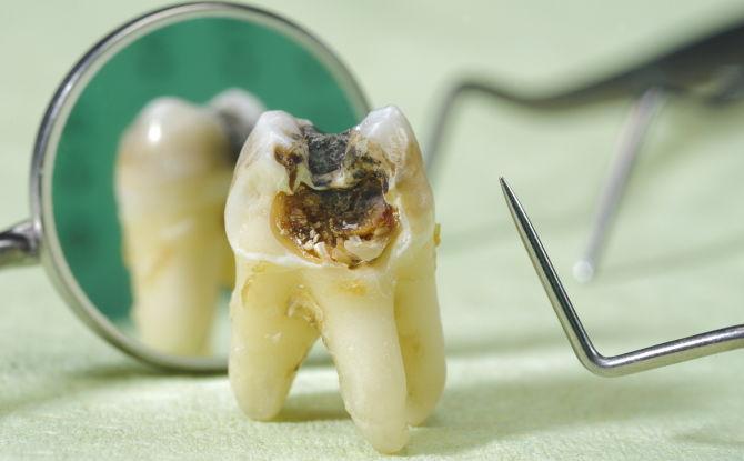 Гнилые зубы у детей и взрослых: фото, причины, что делать