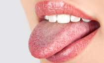 Болит язык сбоку и у основания: что это значит, причины, чем лечить