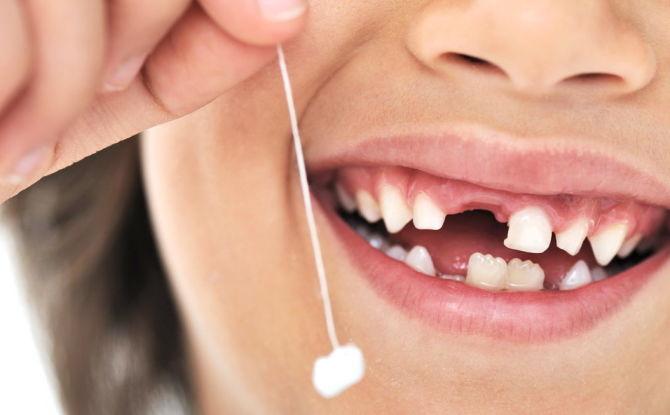 Коренные зубы у детей: сроки и порядок прорезывания, симптомы, чем помочь