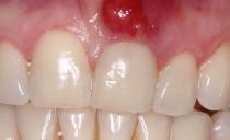 Киста на десне около зуба у взрослого и ребенка: причины, симптомы, удаление, лечение и народная терапия