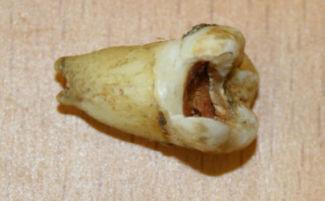 Гнилой коренной зуб болит