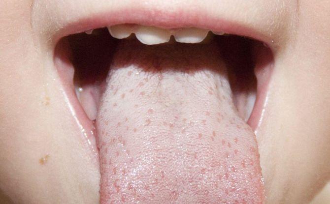 Белый налет на языке у ребенка: причины и методы лечения