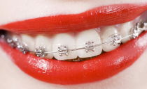 Сколько стоит выпрямить зубы брекетами в 2019 году