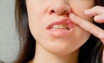 Лечение стоматита во рту у взрослых в домашних условиях