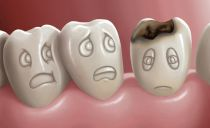 Кариес зубов: что это такое, виды, стадии, как лечить