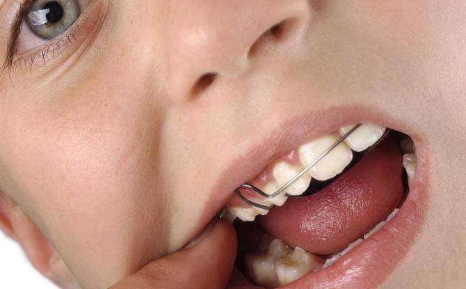 Скобки на зубы: для чего нужны, виды, установка