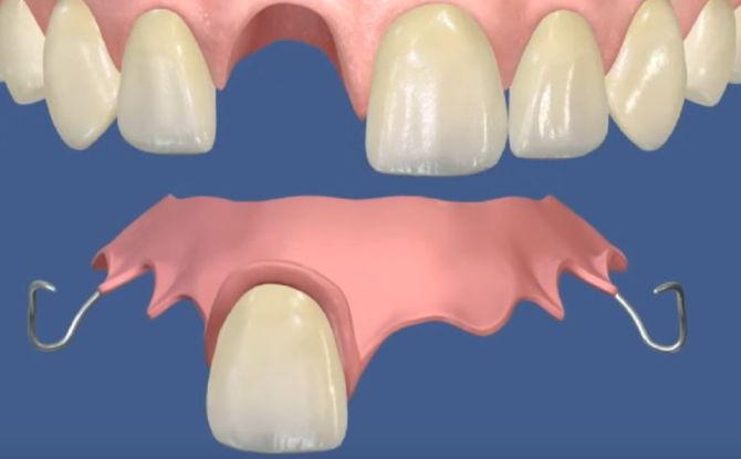 Виды вставных зубов, какие зубы лучше вставлять