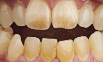 Как и чем очистить зубы от налета в домашних условиях