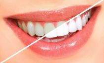 Профессиональное и самостоятельное отбеливание зубов