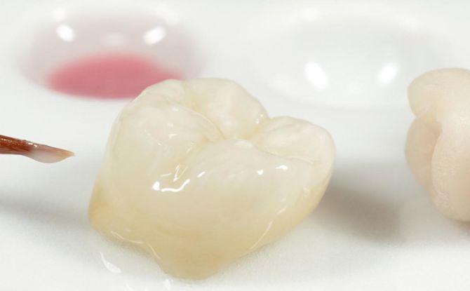 Коронки на зубы: виды, плюсы, минусы и порядок установки