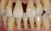Как спасти зубы при пародонтозе: народные средства и лекарства, лечение травами