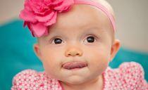 Подрезание подъязычной уздечки у ребенка