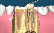 Штифт в зубе: что такое, как ставят, виды, стоимость