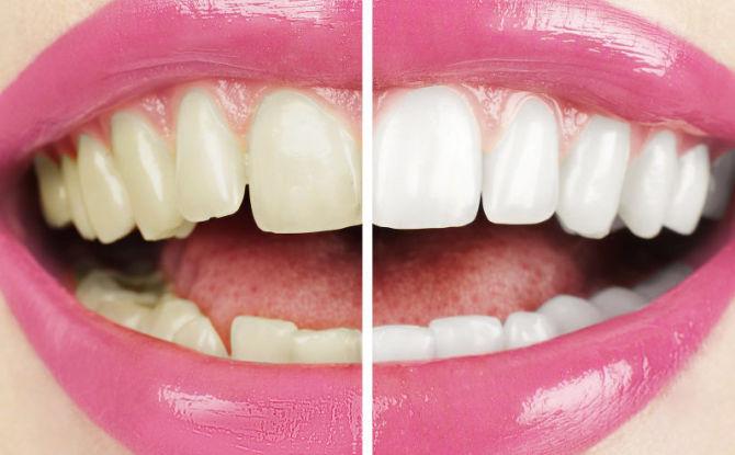 Как быстро отбелить зубы в домашних условиях за 1 день