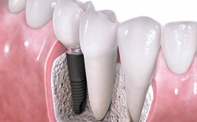 Сколько стоит вставить зуб: виды и стоимость вставных зубов