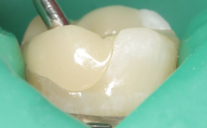 Временная пломба на зуб: зачем ставят, сколько держится, как удаляют