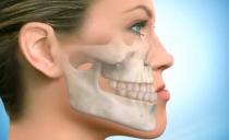 Щелкает и хрустит челюсть при открытии рта и жевании: причины и что делать