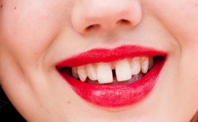 Щели между зубами: почему появляются и как убрать