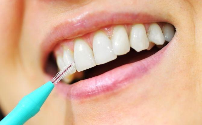 Ершики для чистки зубов: как выбрать и как пользоваться