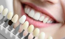 Виниры на зубы: что это такое
