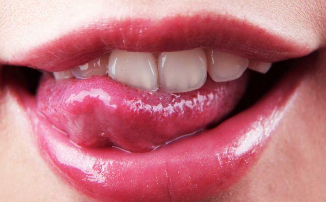Трещины на языке: причины, симптомы и лечение